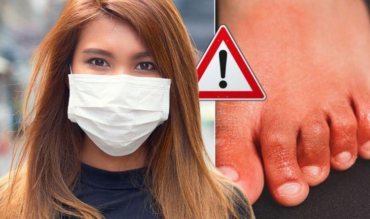 coronavirus-warning-does-your-skin-look-like-this-reddish-and-purplish-bumps-to-avoid