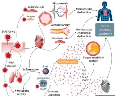 vascular inflammation