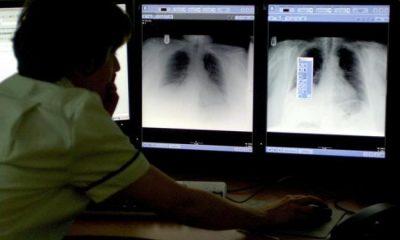 tuberculosis soar